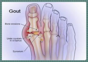 Kombucha and gout foot